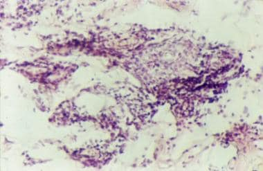 A higher magnification of the same biopsy specimen