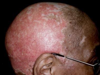 Widespread scarring alopecia.