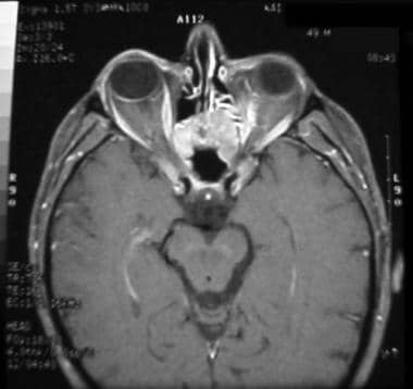 MRI of same patient as in the image above taken 4
