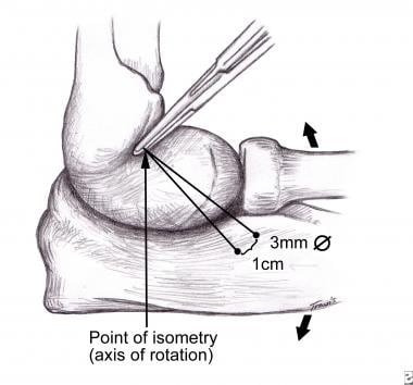 LUCL (lateral ulnar collateral ligament) isometric