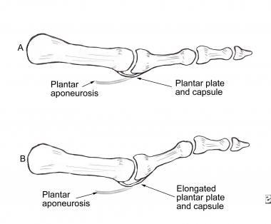Pathomechanics of hammertoe deformity. Elongated p