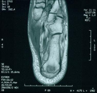 Transverse MRI of foot in symptomatic 11-year-old