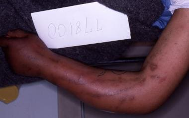 Track marks in a heroin intravenous drug user.