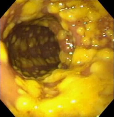 Endoscopic visualization of pseudomembranous colit