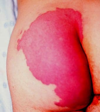 Buttock port-wine stain.