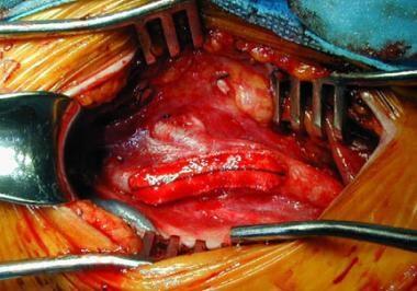 Carotid artery following Dacron patch angioplasty.