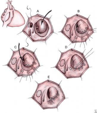 Surgical repair of Ebstein malformation as describ
