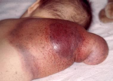 Back of an arm showing the typical bruising associ