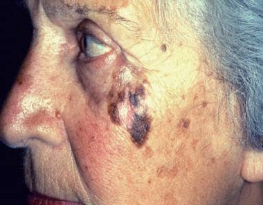 Photograph shows lentigo maligna melanoma on a pat