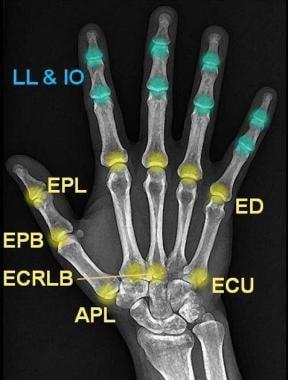 Extensor tendon insertion sites. LL = musculi lumb