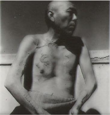 Japanese man with injuries after atomic bombing. C