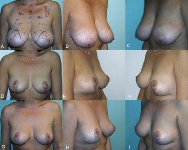 Simplified vertical breast reduction, preoperative