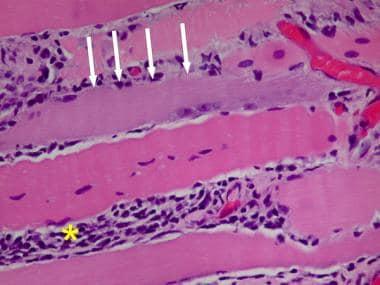 Polymyositis, regenerating fiber, H&E frozen secti