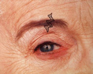 Scar revision. Planning for W-plasty through eyebr