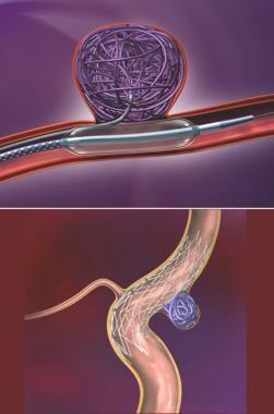 Novel treatment strategies for treatment of wide-n
