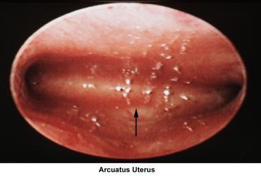 Infertility. Arcuate uterus. Image courtesy of Jai
