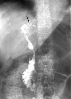 T-tube cholangiogram shows irregularity of the com