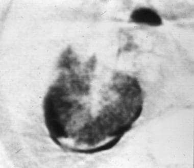 Magnified computed tomography scan obtained with a