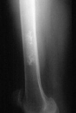 Radiograph of the right femur demonstrates a calci