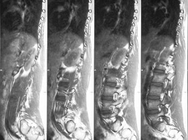 Sagittal MRIs show lumbar scoliosis.