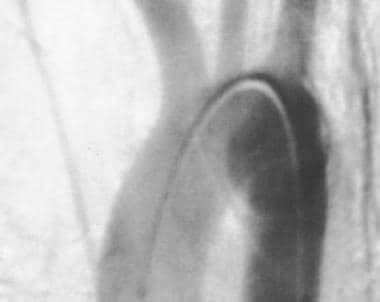 Aorta, trauma. Posteroanterior angiogram shows a f