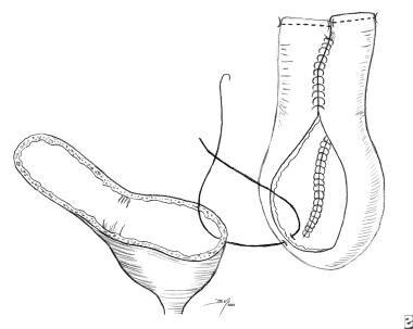 Augmentation cystoplasty. Anastomose augmenting se