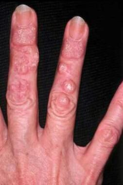 Hypertrophic lesions of chronic cutaneous lupus er