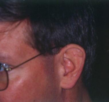 Asymptomatic nodule on the left ear.