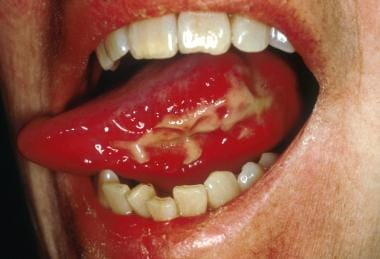 Ulcerative oral mucositis lesion on the lateral an