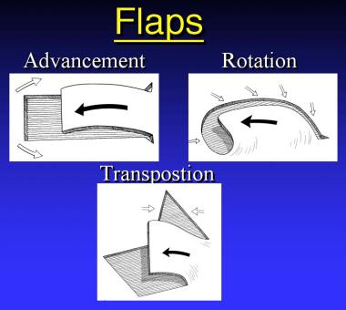 Flaps.