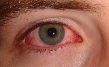 viral conjunctivitis: practice essentials, background, etiology, Skeleton