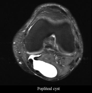 Cystic Lesions About the Knee: Practice Essentials ...