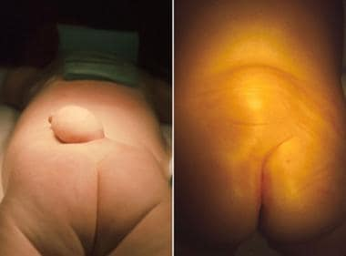 These 2 photographs depict the lumbar regions on 2