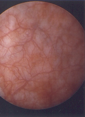 A cystoscopic view of the bladder mucosa reveals s