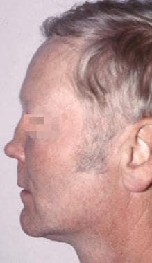 Typical short nose deformity.