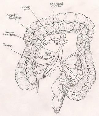 Arterial supply of the right colon.