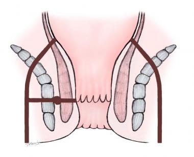Extrasphincteric fistula.