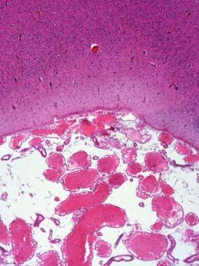 Angiomatosis in Sturge-Weber syndrome.