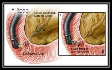 Technique for pancreatic stone extraction. Used wi
