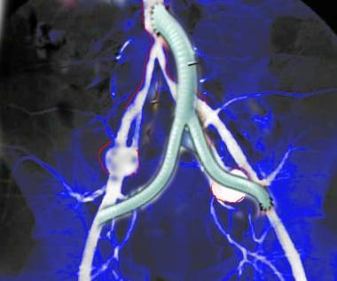 Image shows aorta iliac bypass.