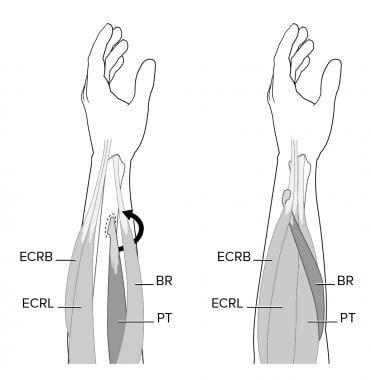 Pronator teres (PT) to extensor carpi radialis bre