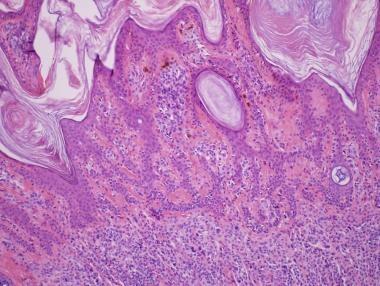 Keratotic melanocytic nevus. Epidermal hyperplasia