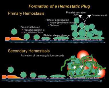 Normal hemostasis.