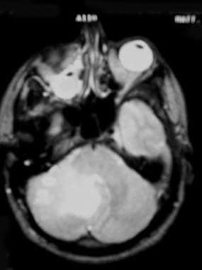 Medulloblastoma. Axial MRI of the posterior fossa