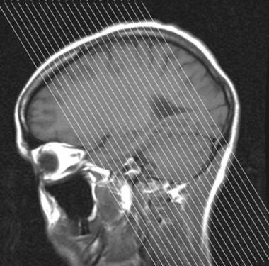 Proper magnetic resonance imaging (MRI) plane for