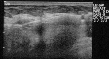 Longitudinal ultrasonogram shows the snowstorm, or