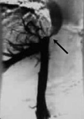 Inferior venacavogram shows an upper inferior vena
