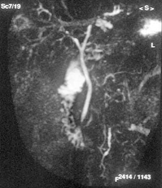 Magnetic resonance cholangiopancreatography shows