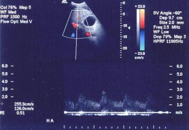 In cirrhosis, flow increases in the hepatic artery
