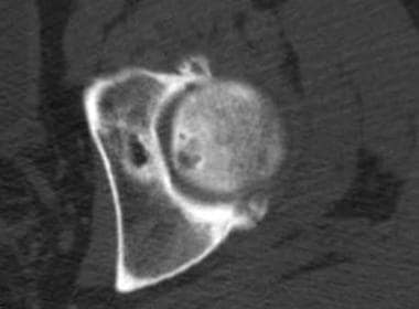 Transverse CT scan image obtained through the supe